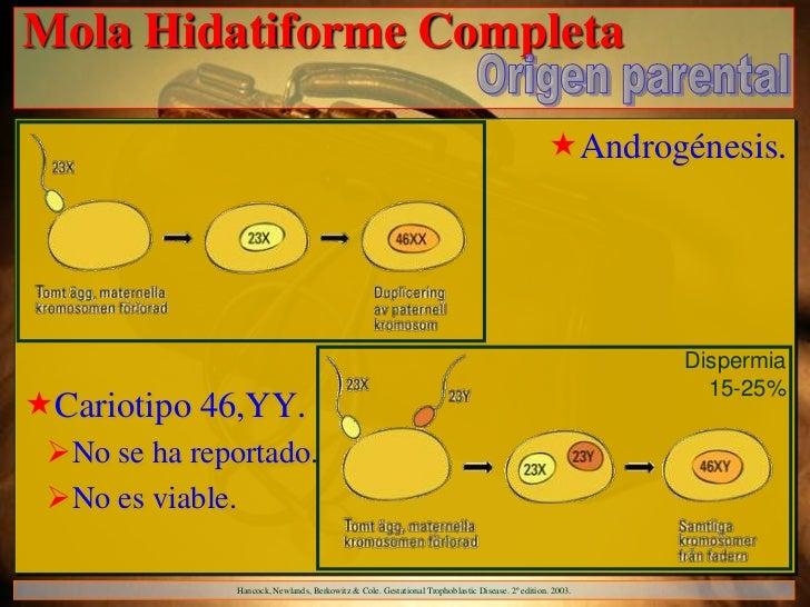 Mola Hidatiforme Completa                                                                                                 ...