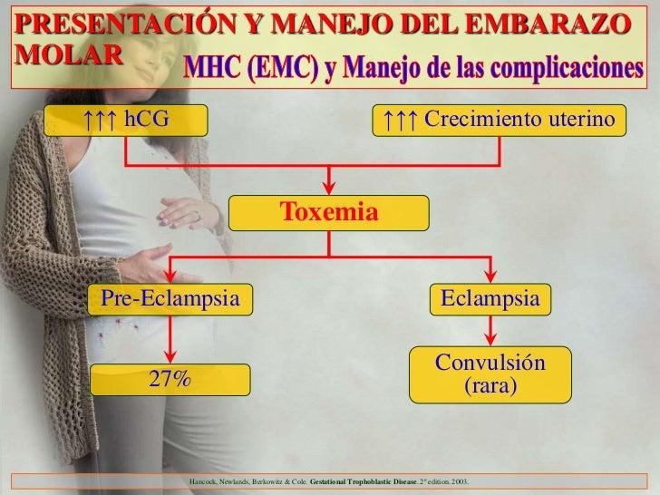 PRESENTACIÓN Y MANEJO DEL EMBARAZOMOLAR   ↑↑↑ hCG                                                                ↑↑↑ Creci...