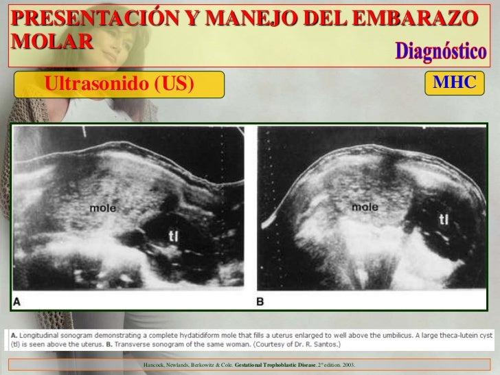 PRESENTACIÓN Y MANEJO DEL EMBARAZOMOLAR  Ultrasonido (US)                                                                 ...