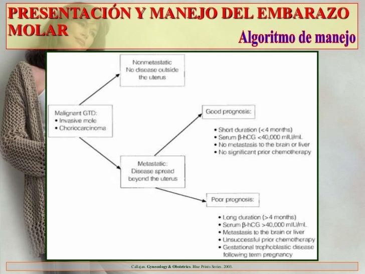 PRESENTACIÓN Y MANEJO DEL EMBARAZOMOLAR            Callajan. Gynecology & Obstetrics. Blue Prints Series. 2003.