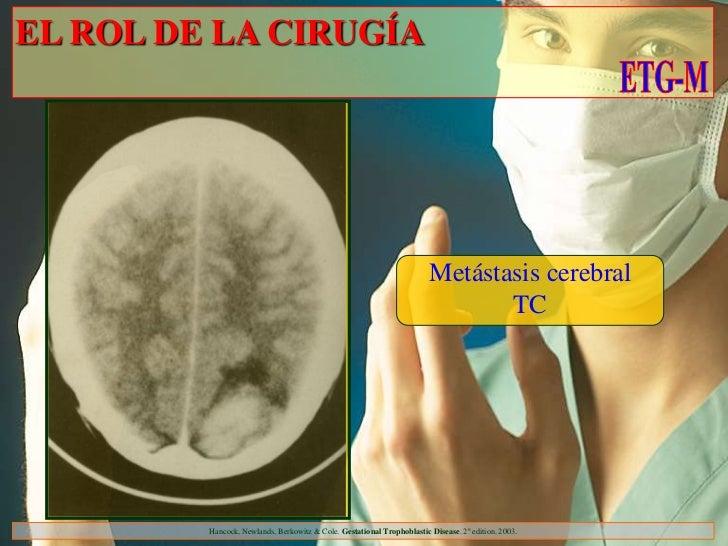 EL ROL DE LA CIRUGÍA                                                                        Metástasis cerebral           ...