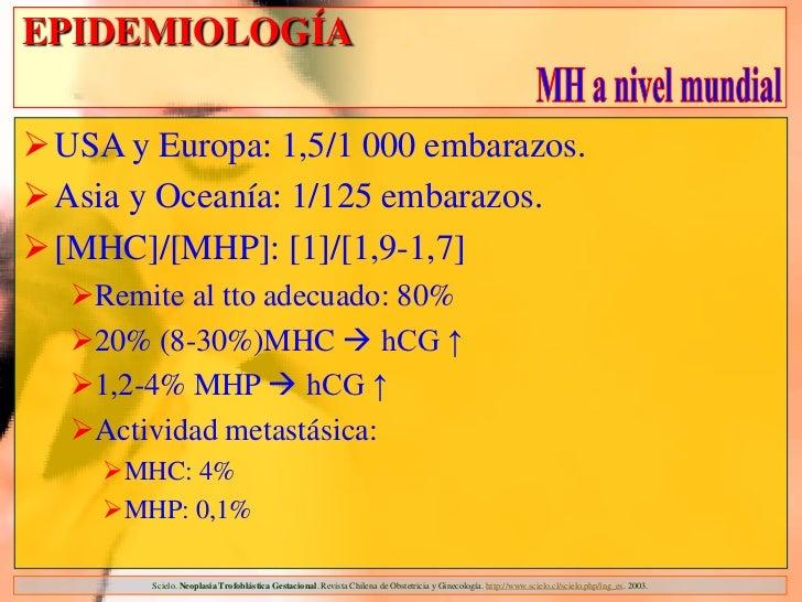 EPIDEMIOLOGÍAUSA y Europa: 1,5/1 000 embarazos.Asia y Oceanía: 1/125 embarazos.[MHC]/[MHP]: [1]/[1,9-1,7]  Remite al t...