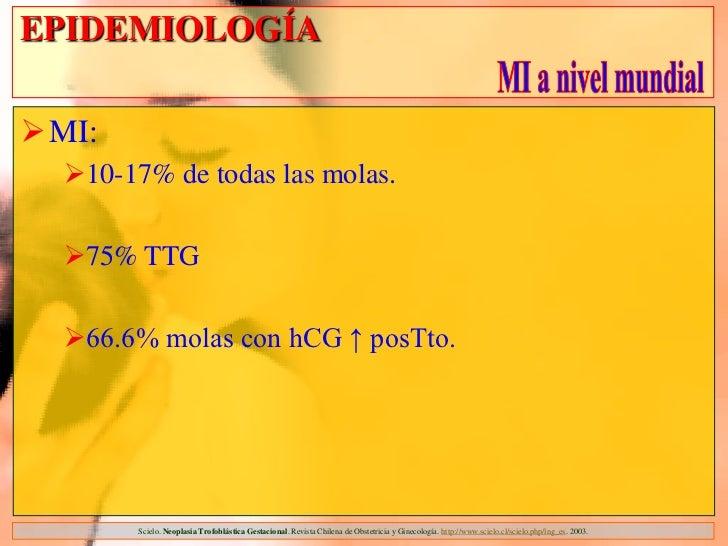EPIDEMIOLOGÍAMI:  10-17% de todas las molas.  75% TTG  66.6% molas con hCG ↑ posTto.        Scielo. Neoplasia Trofoblá...