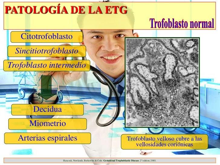 PATOLOGÍA DE LA ETG   Citotrofoblasto  SincitiotrofoblastoTrofoblasto intermedio       Decidua      Miometrio  Arterias es...