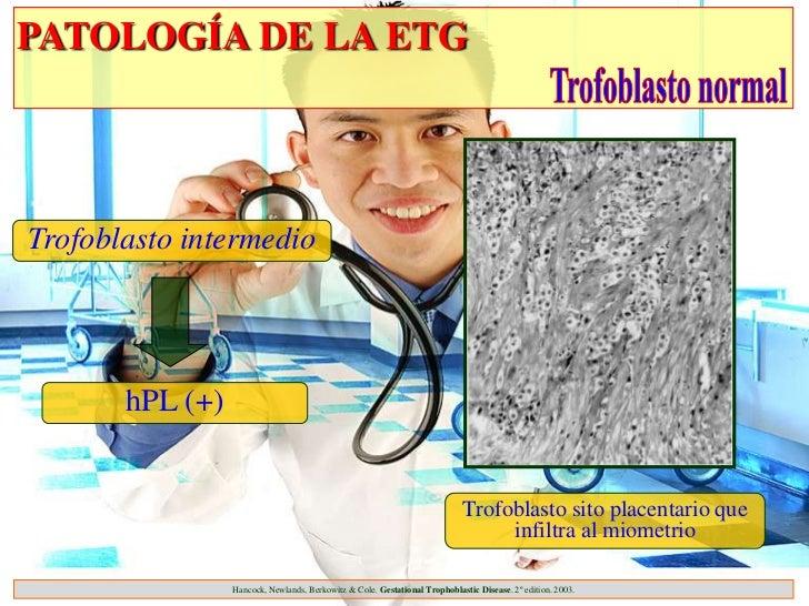 PATOLOGÍA DE LA ETGTrofoblasto intermedio       hPL (+)                                                                   ...