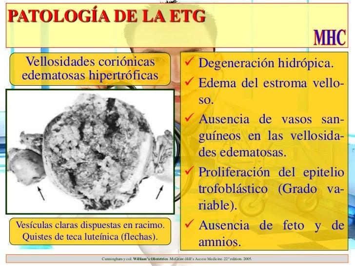 PATOLOGÍA DE LA ETG  Vellosidades coriónicas                                              Degeneración hidrópica. edemato...
