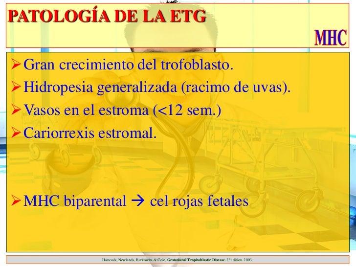 PATOLOGÍA DE LA ETGGran crecimiento del trofoblasto.Hidropesia generalizada (racimo de uvas).Vasos en el estroma (<12 s...