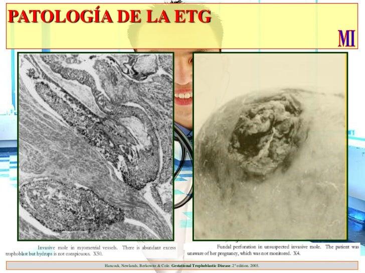 PATOLOGÍA DE LA ETG         Hancock, Newlands, Berkowitz & Cole. Gestational Trophoblastic Disease. 2º edition. 2003.