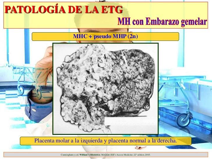 PATOLOGÍA DE LA ETG                          MHC + pseudo MHP (2n)    Placenta molar a la izquierda y placenta normal a la...