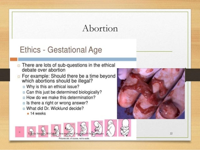 ethical debates in abortion and euthanasia The validity of the double effect doctrine is examined in euthanasia and abortion in this paper i will present arguments that journal of medical ethics.