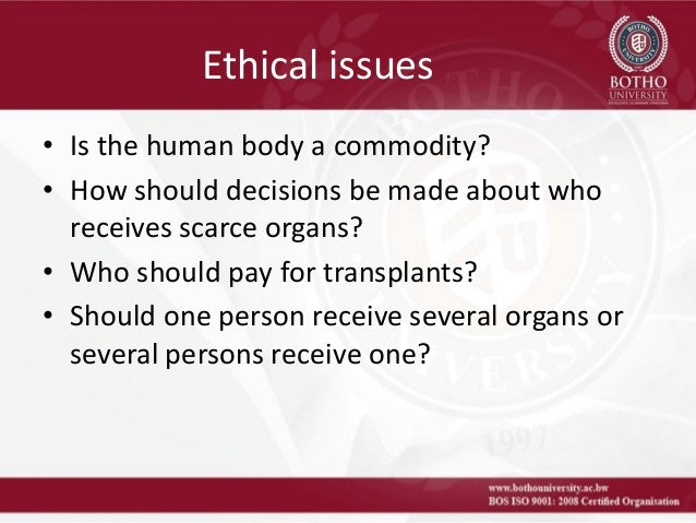 Ethical Aspects of Organ Allocation in Transplantation
