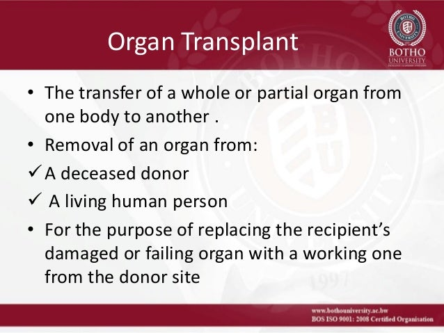 organ transplant ethics essay Morality and ethics human organ donation & harvesting sponsored link the following information sources were used to prepare and update the above essay.