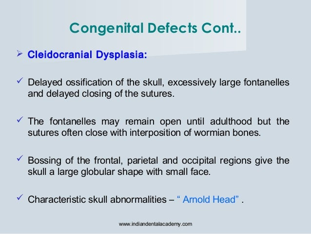 Cleidocranial Dysplasia:  Delayed ossification of the skull, excessively large fontanelles and delayed closing of the s...