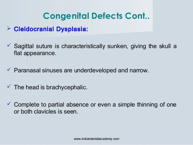  Cleidocranial Dysplasia:  Sagittal suture is characteristically sunken, giving the skull a flat appearance.  Paranasal...