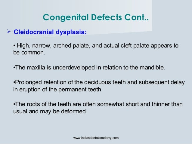  Cleidocranial dysplasia: • High, narrow, arched palate, and actual cleft palate appears to be common. •The maxilla is un...