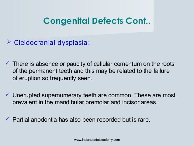  Cleidocranial dysplasia:  There is absence or paucity of cellular cementum on the roots of the permanent teeth and this...