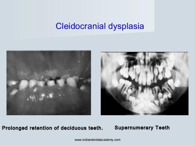 Prolonged retention of deciduous teeth. Supernumerary Teeth Cleidocranial dysplasia www.indiandentalacademy.comwww.indiand...