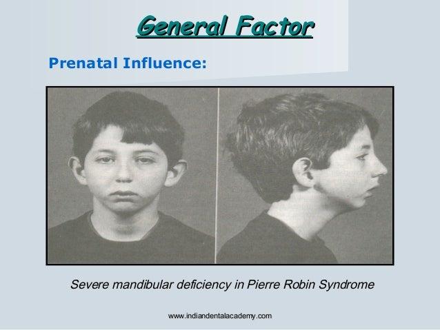 Prenatal Influence: Severe mandibular deficiency in Pierre Robin Syndrome General FactorGeneral Factor www.indiandentalaca...