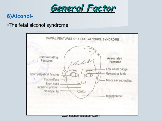 6)Alcohol- •The fetal alcohol syndrome General FactorGeneral Factor www.indiandentalacademy.comwww.indiandentalacademy.com