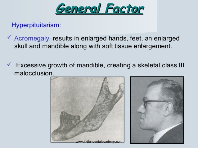 General FactorGeneral Factor Hyperpituitarism:  Acromegaly, results in enlarged hands, feet, an enlarged skull and mandib...