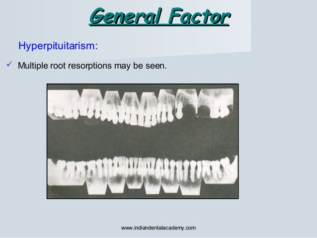 General FactorGeneral Factor Hyperpituitarism:  Multiple root resorptions may be seen. www.indiandentalacademy.comwww.ind...