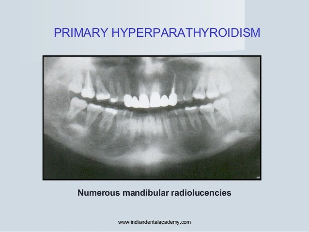 PRIMARY HYPERPARATHYROIDISM Numerous mandibular radiolucencies www.indiandentalacademy.comwww.indiandentalacademy.com