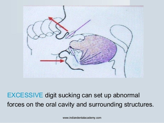 EXCESSIVE digit sucking can set up abnormal forces on the oral cavity and surrounding structures. www.indiandentalacademy....
