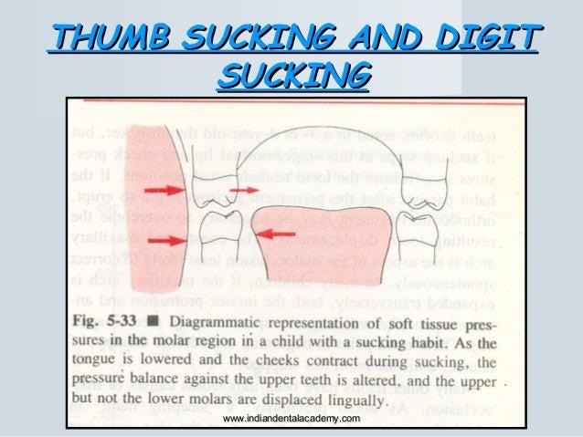 THUMB SUCKING AND DIGITTHUMB SUCKING AND DIGIT SUCKINGSUCKING www.indiandentalacademy.comwww.indiandentalacademy.com