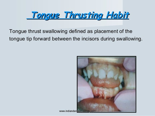 Tongue Thrusting HabitTongue Thrusting Habit Tongue thrust swallowing defined as placement of the tongue tip forward betwe...