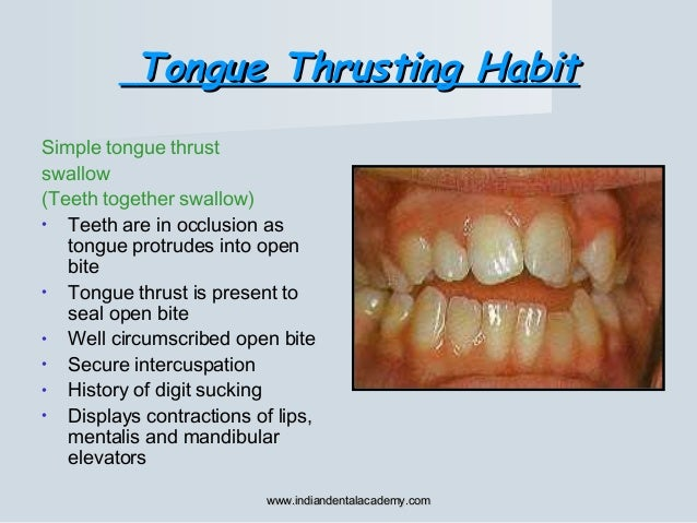 Tongue Thrusting HabitTongue Thrusting Habit Simple tongue thrust swallow (Teeth together swallow) • Teeth are in occlusio...