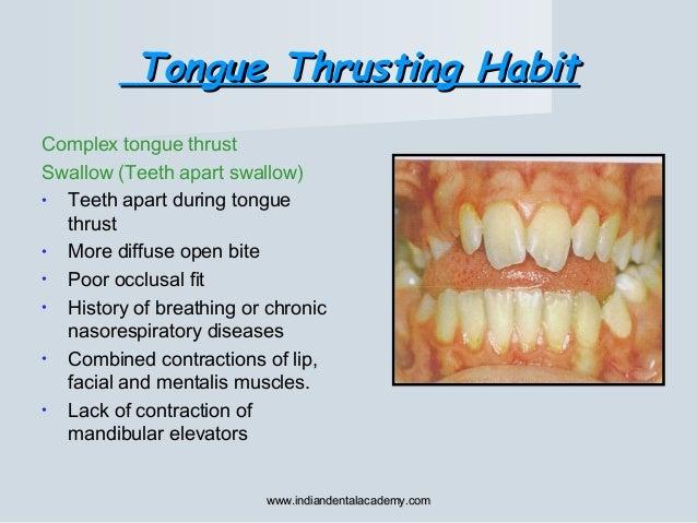 Tongue Thrusting HabitTongue Thrusting Habit Complex tongue thrust Swallow (Teeth apart swallow) • Teeth apart during tong...