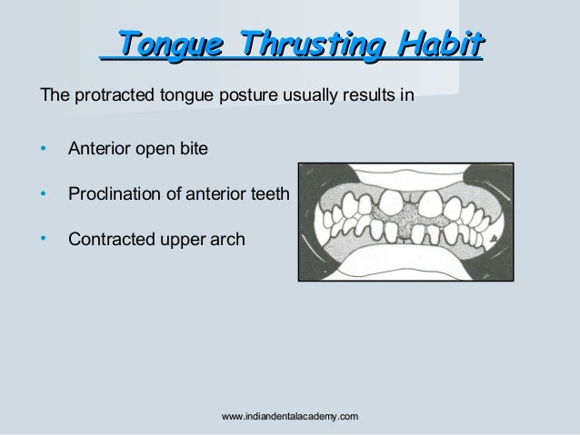 The protracted tongue posture usually results in • Anterior open bite • Proclination of anterior teeth • Contracted upper ...