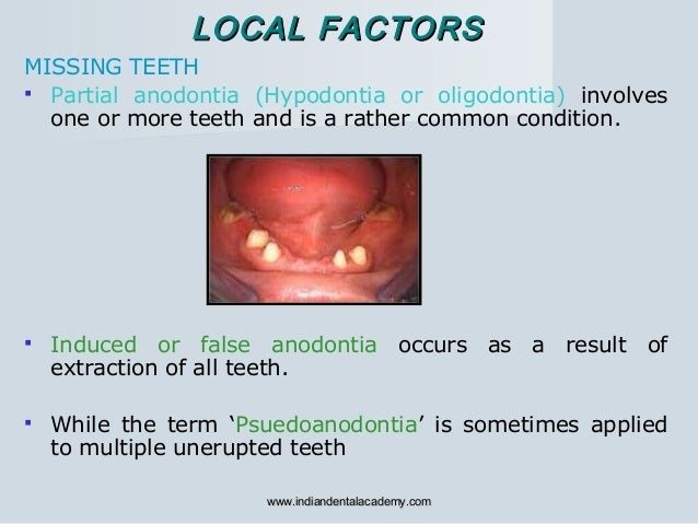 Etiology of malocclusion 1/certified fixed orthodontic courses by Indian dental academy