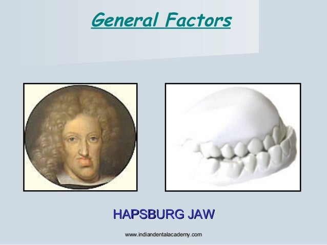 General Factors HAPSBURG JAWHAPSBURG JAW www.indiandentalacademy.comwww.indiandentalacademy.com