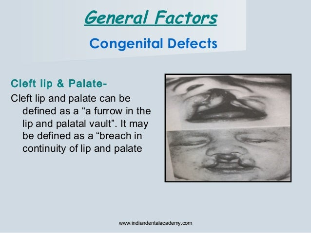 """Congenital Defects Cleft lip & Palate- Cleft lip and palate can be defined as a """"a furrow in the lip and palatal vault"""". I..."""