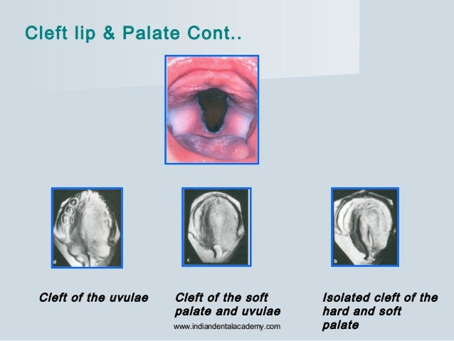 Cleft of the uvulae Cleft of the soft palate and uvulae Isolated cleft of the hard and soft palate Cleft lip & Palate Cont...