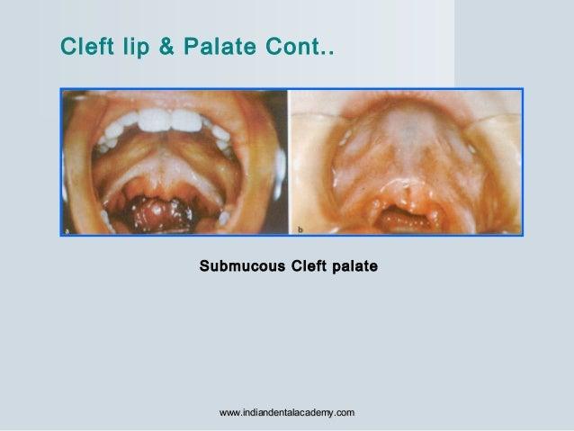Submucous Cleft palate Cleft lip & Palate Cont.. www.indiandentalacademy.comwww.indiandentalacademy.com