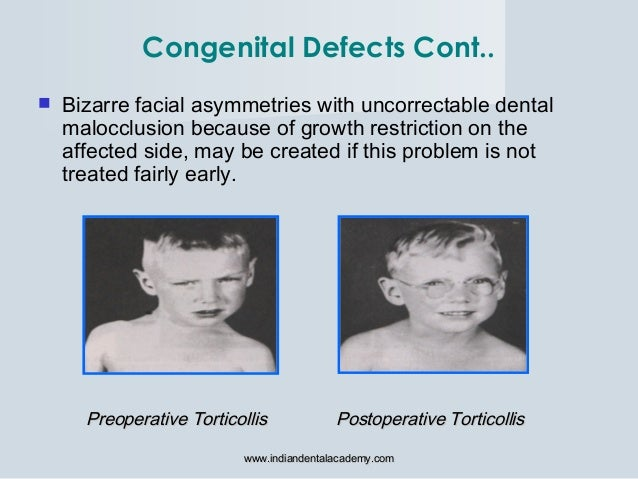  Bizarre facial asymmetries with uncorrectable dental malocclusion because of growth restriction on the affected side, ma...