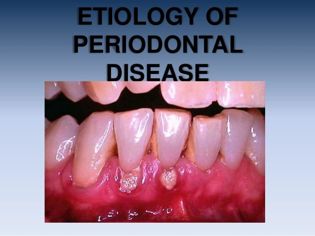ETIOLOGY OFPERIODONTAL  DISEASE