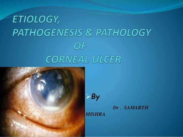 By Dr . SAMARTH MISHRA