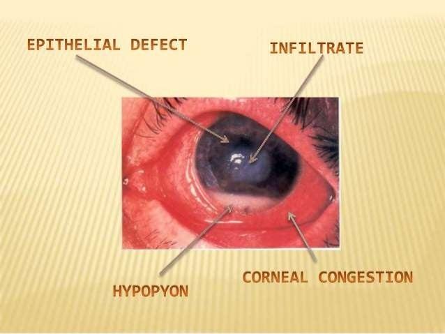 CORNEAL ULCER (ULCERATIVE KERATITIS):  DEPENDING ON LOCATION : a)central corneal ulcer b) peripheral corneal ulcer  DEPE...