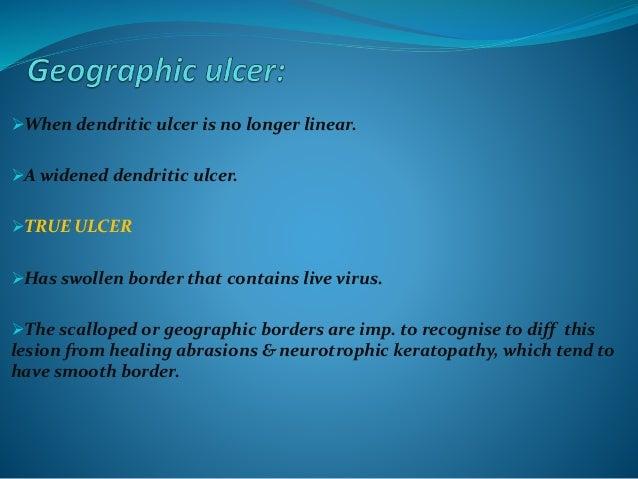 Clinical varieties of mooren's ulcer: A)BENIGN FORM: -unilateral -slow progress -elderly -mild to mod. Symptoms -respond w...