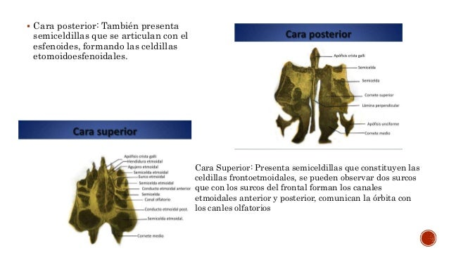 ETMOIDES (HUESO ETMOIDAL) ANATOMIA HUMANA