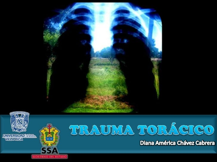 TRAUMA TORÁCICO<br />Diana América Chávez Cabrera<br />