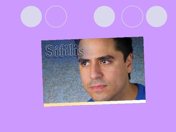 Enfermedades de Transmision sexual Slide 2