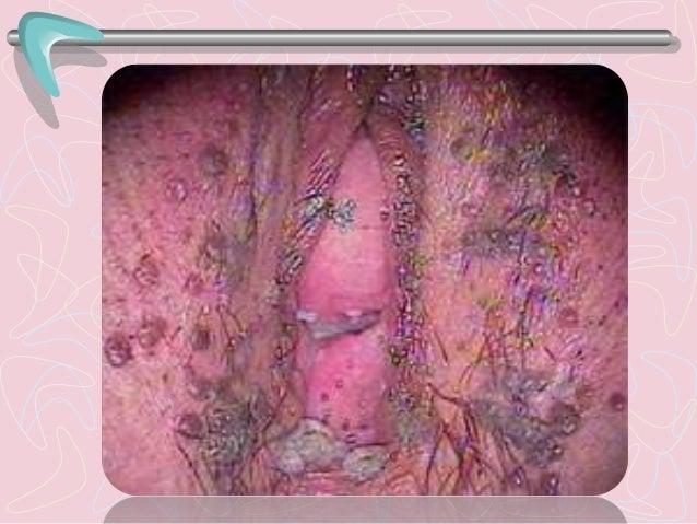 • Enfermedad de transmisión sexual crónica producida por la bacteria espiroqueta Treponema pallidum, subespecie pallidum. ...