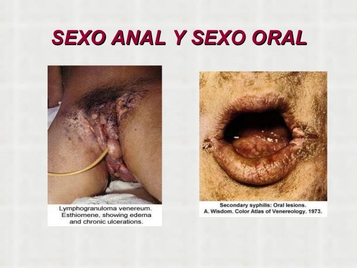 visitando trabajadora sexual sexo anal