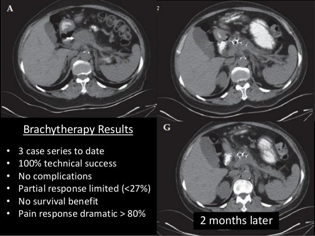 Eus Guided Interventions For Pancreatobiliary Tumours
