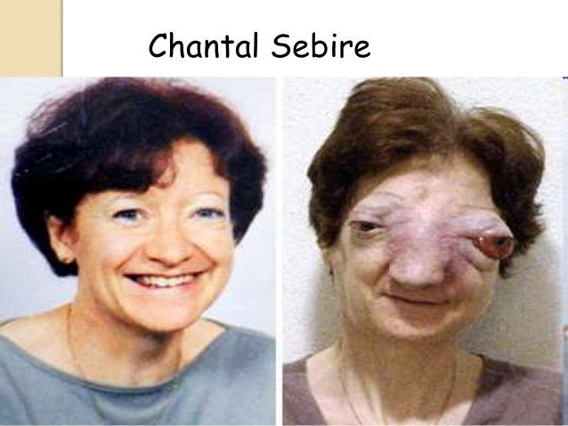 Chantal Sébire Euthanasiapowerpoint-110919143431phpapp01-2-638