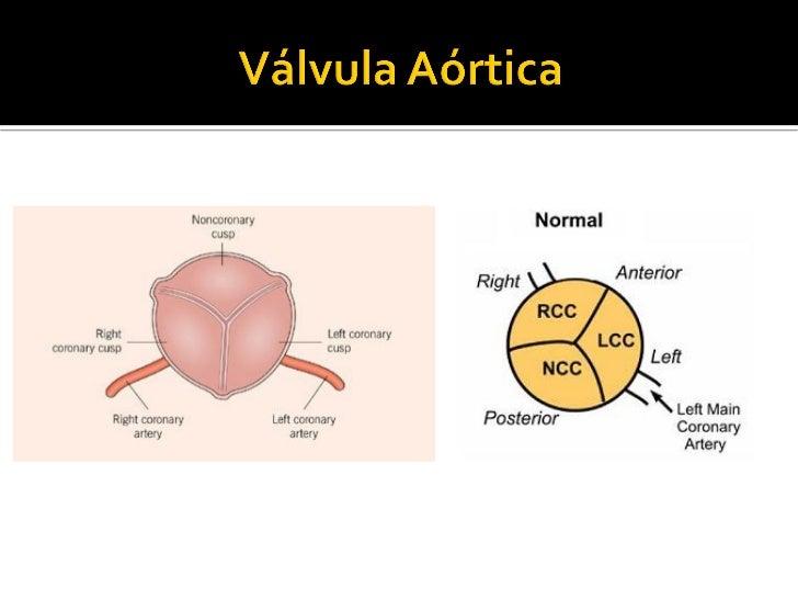 Evaluación ecocardiográfica en Valvulopatía aórtica